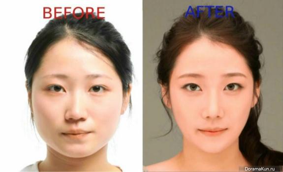 Лечение экземы кожи